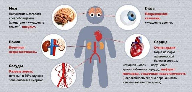 kraujo leidimo nauda hipertenzijai nervų spiralė hipertenzijai gydyti