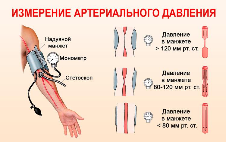 sergant hipertenzija, indai yra susiaurėję arba išsiplėtę rūgštynė ir hipertenzija